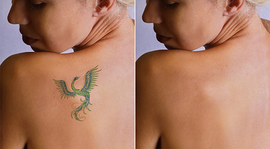 Images of Tattoo Removal, Dr. Adam Maddox, Thrive Aesthetic & Anti-Aging Center
