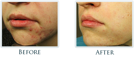 Acne Scars Reduction Portland - Before and After Case 1