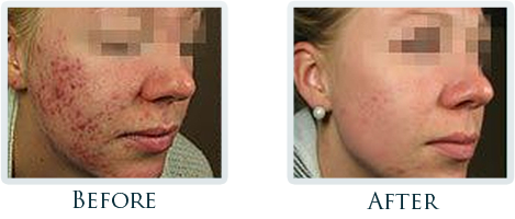 Acne  Scar Reduction Portland - Before and After Case 2