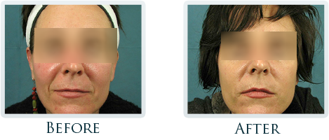 Botox And Dermal Fillers Portland - Before and After Case 2