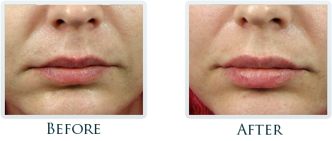 Botox And Dermal Fillers Portland - Before and After Case 10