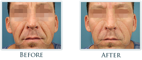 Botox And Dermal Fillers Portland - Before and After Case 12