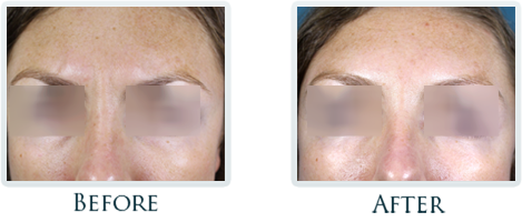 Botox And Dermal Fillers Portland - Before and After Case 1