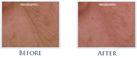 Botox And Dermal Fillers Portland - Before and After Case 18