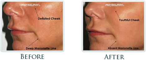 Botox And Dermal Fillers Portland - Before and After Case 19