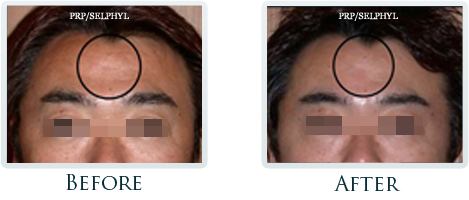 Botox And Dermal Fillers Portland - Before and After Case 20