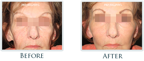 Botox And Dermal Fillers Portland - Before and After Case 21