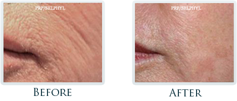 Botox And Dermal Fillers Portland - Before and After Case 22