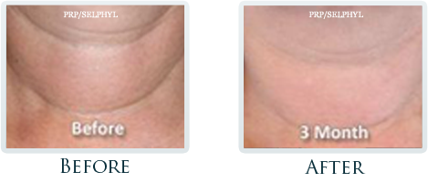 Botox And Dermal Fillers Portland - Before and After Case 24