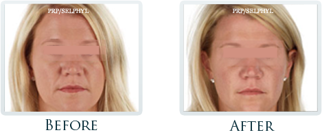 Botox And Dermal Fillers Portland - Before and After Case 26