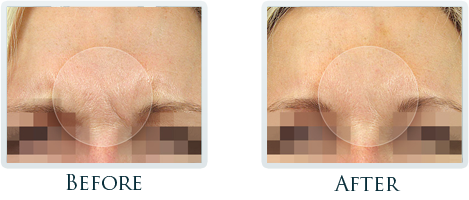 Botox And Dermal Fillers Portland - Before and After Case 3
