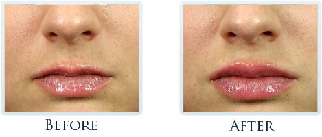 Botox And Dermal Fillers Portland - Before and After Case 5