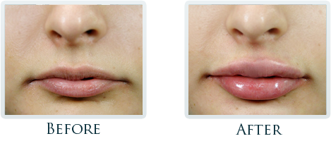 Botox And Dermal Fillers Portland - Before and After Case 6