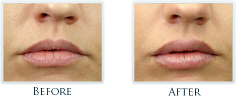 Botox And Dermal Fillers Portland - Before and After Case 7
