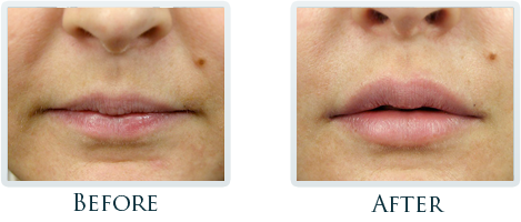 Botox And Dermal Fillers Portland - Before and After Case 8