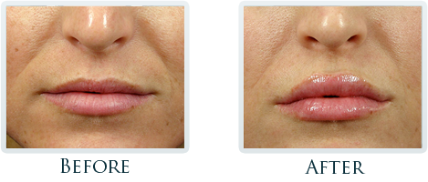 Botox And Dermal Fillers Portland - Before and After Case 9