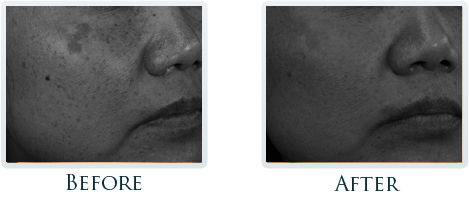 Brown Spots And Melasma Portland - Before and After Case 4