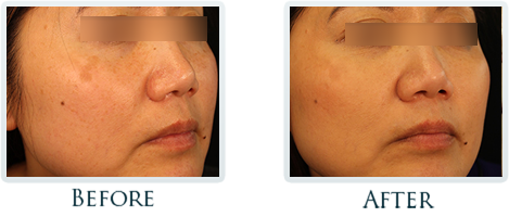 Brown Spots And Melasma Portland - Before and After Case 5