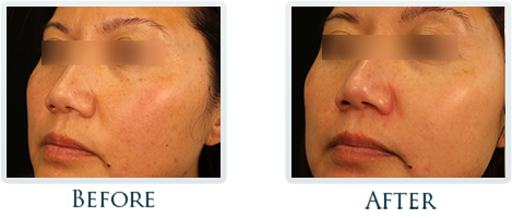 Brown Spots And Melasma Portland - Before and After Case 6