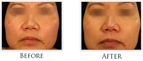 Brown Spots And Melasma Portland - Before and After Case 7
