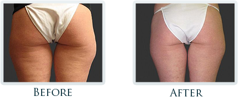 Cellulite Reduction Portland - Before and After Case 1