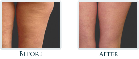 Cellulite Reduction Portland - Before and After Case 2