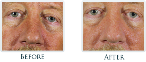Platelet Rich Plasma Treatment Portland - Before and After Case 2