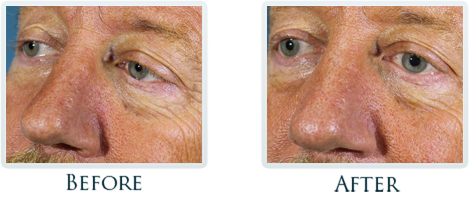 Platelet Rich Plasma Treatment Portland - Before and After Case 3