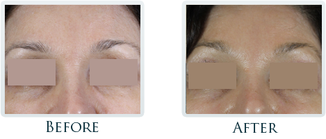 Botox And Dermal Fillers Portland - Before and After Case 31