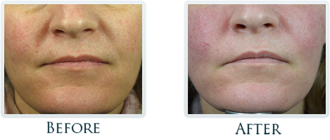 Botox And Dermal Fillers Portland - Before and After Case 28