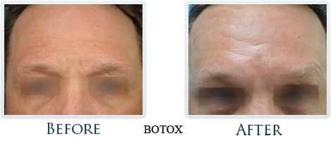 Botox And Dermal Fillers Portland - Before and After Case 29