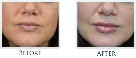 Botox And Dermal Fillers Portland - Before and After Case 30