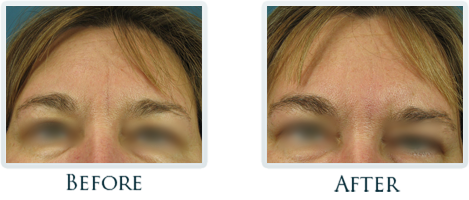 Botox And Dermal Fillers Portland - Before and After Case 27