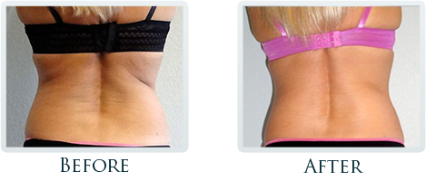 Fat Removal And Body Contouring Portland - Before and After Case 4