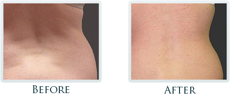 Fat Removal And Body Contouring Portland - Before and After Case 1