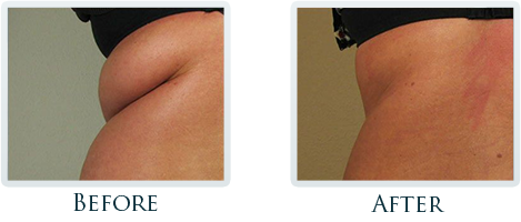 Fat Removal And Body Contouring Portland - Before and After Case 8