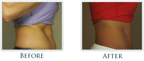 Fat Removal And Body Contouring Portland - Before and After Case 3