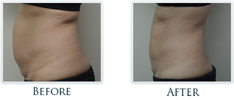 Exilis Portland - Before and After Case 15
