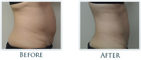 Exilis Portland - Before and After Case 16