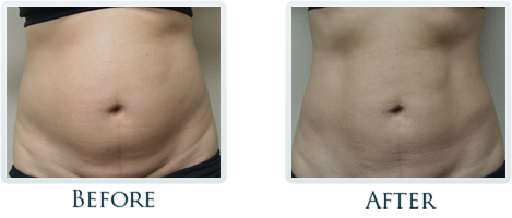 Exilis Portland - Before and After Case 17