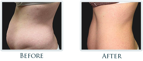 Fat Removal And Body Contouring Portland - Before and After Case 5