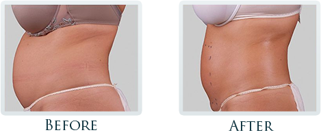 Fat Removal And Body Contouring Portland - Before and After Case 6
