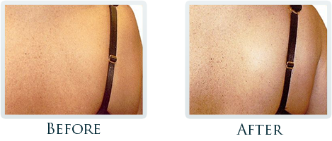 Fat Removal And Body Contouring Portland - Before and After Case 7