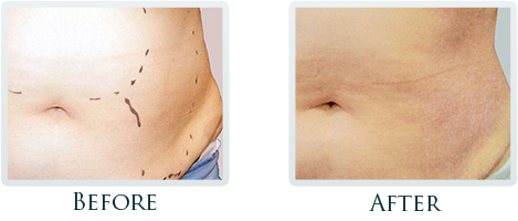 Fat Removal And Body Contouring Portland - Before and After Case 2