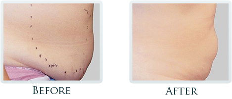 Fat Removal And Body Contouring Portland - Before and After Case 9