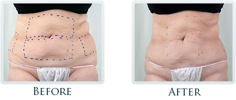 Fat Removal And Body Contouring Portland - Before and After Case 10