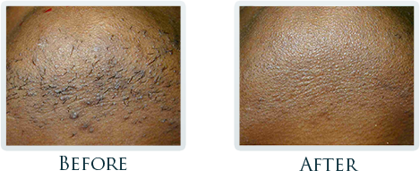 Hair Reduction Portland - Before and After Case 2