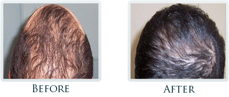 Hair Restoration Portland - Before and After Case 1