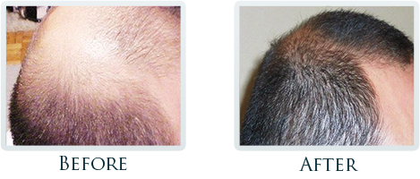 Hair Restoration Portland - Before and After Case 2