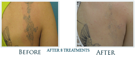 Tattoo Removal Process Portland - Before and after 5